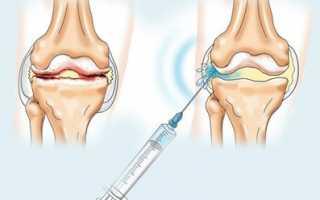 Препараты на основе гиалуроновой кислоты для суставов в уколах и таблетках самые лучшие