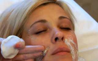Коррекция носогубных складок гиалуроновой кислотой: советы и рекомендации
