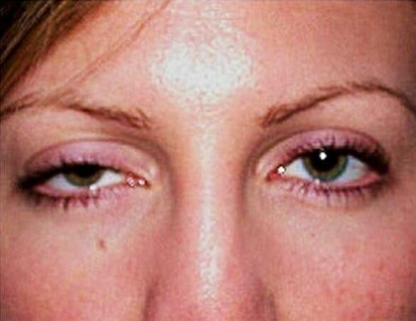 Двоение в глазах после операции