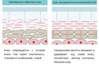 Гиалуроновая кислота уколы под глаза: Фото до и после инъекции от морщин