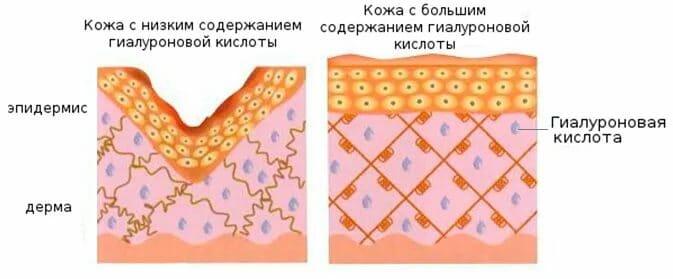 гиалуронат